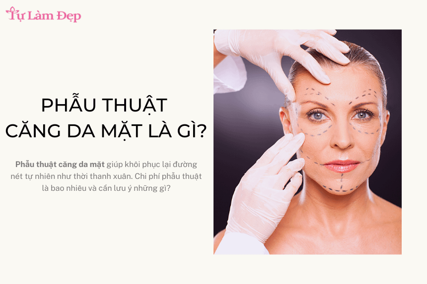 Phẫu thuật căng da mặt là gì