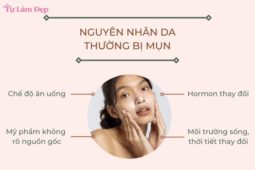 Nguyên nhân da thường bị mụn