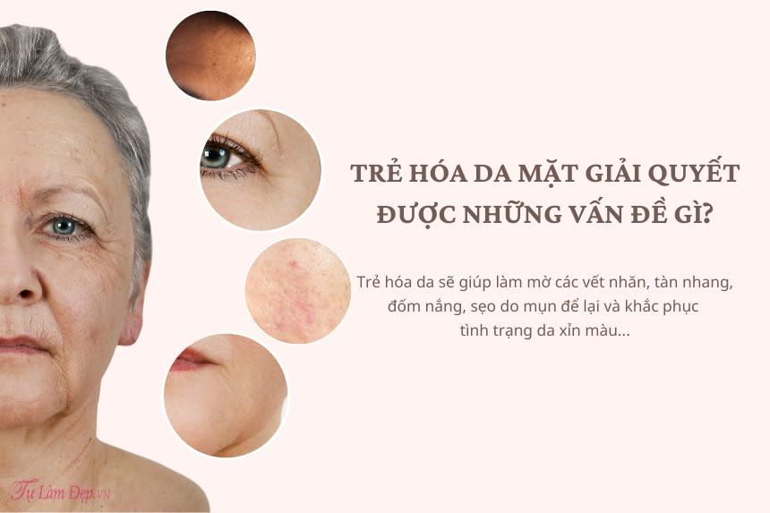 Trẻ hóa da mặt giải quyết được những vấn đề gì